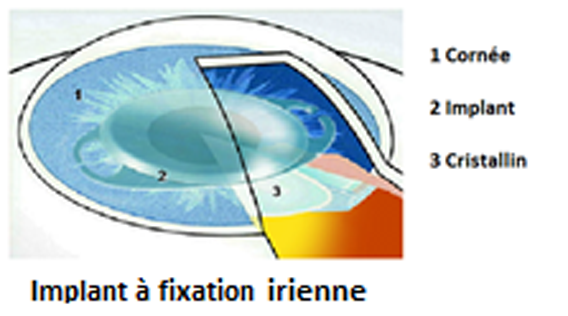 implant-intraoculaire