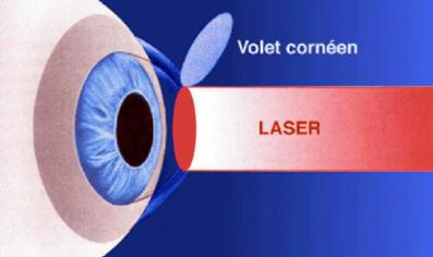laser-lasik
