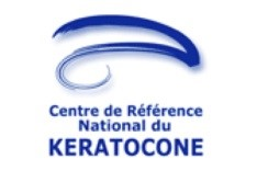 keratocone